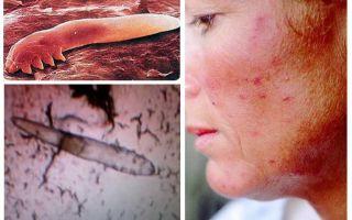 Pidocchi sottocutanei negli esseri umani sul corpo e sulla testa