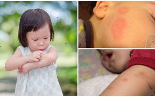 Punture di zanzara sulla pelle di un adulto o di un bambino