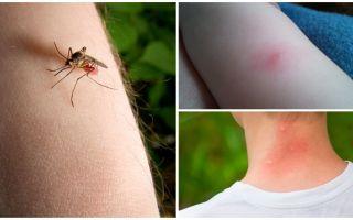 Qual è la differenza tra una puntura di zanzara e un insetto o morso di zecca?
