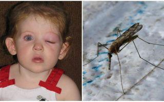 Cosa fare se un bambino ha un occhio gonfio dopo una puntura di zanzara