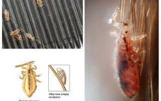 Periodo di incubazione di pidocchi e lendini nell'uomo