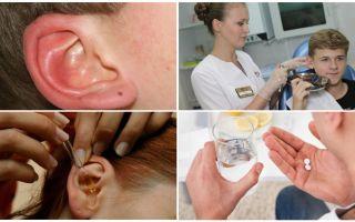 Tick nell'orecchio di una persona: sintomi e trattamento