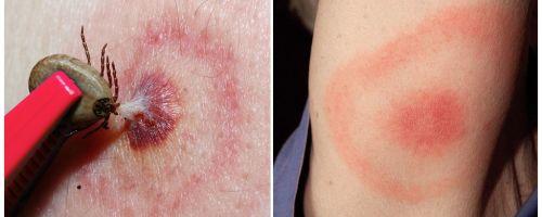 Qual è la malattia di Lyme, i suoi sintomi, il trattamento e la foto