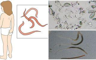 Quali sono i pinworm e come appaiono