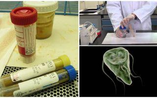Come passare correttamente le feci su Giardia, metodi di analisi