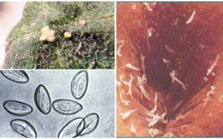 Che aspetto hanno le uova di pinworm?