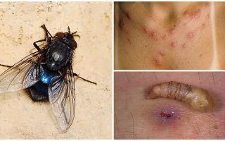 Una mosca che depone le larve sotto la pelle umana