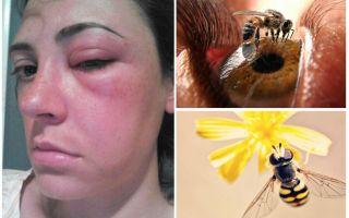 Che cosa succede se un'ape ha morso negli occhi e si è gonfiata