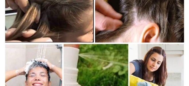 Mezzi per prevenire i pidocchi nei bambini