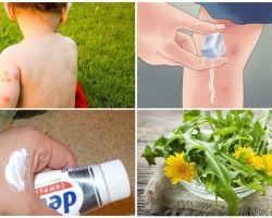 Come ungere le punture di zanzara di un bambino