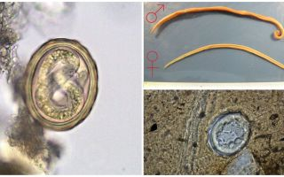 Lo schema del ciclo di vita dello sviluppo del nematode umano