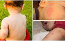 Fondi per i bambini dopo le punture di zanzara