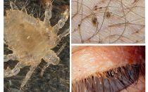 Sintomi e trattamento dei pidocchi pubici