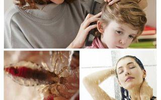 Prevenzione della pediculosi e del tifo
