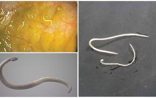 Modi di infezione da ossiuri