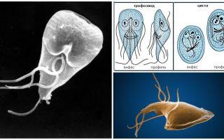 Malattie gengivali negli adulti - sintomi e trattamento