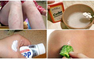 Come rimuovere le macchie rosse dalle punture di zanzara