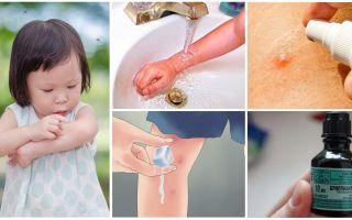 Come e cosa trattare le punture di zanzara in un bambino