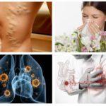Allergia, malattie cardiache, tubercolosi
