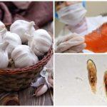 Trattamento di opisthorchiasis all'aglio